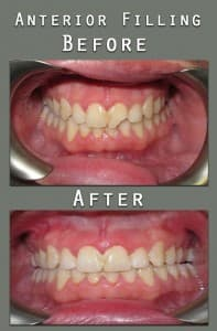 Before and After Anterior White Filling