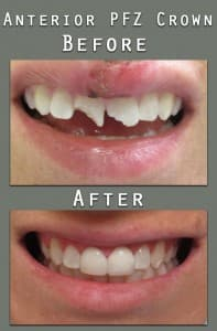 Before and After Anterior-PFZ
