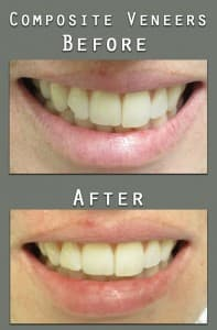 Before and After composite veneer