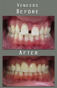 Before and After veneer